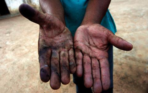 Jordbruksarbetare som skördar kassava i Pesqueira i delstaten Pernambuco i nordöstra Brasilien berättar om slavarbete och visar sina skadade händer. Bild: Alejandro Arigón/IPS
