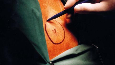 En ring markeras med penna runt cancern på huden inför en operation. Bild: Björn Larsson/TT