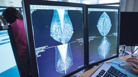 Diagnosticering via röntgenbilder är ett område där artificiell intelligens (AI) redan presterar lika bra som läkare.  Bild: Christine Olsson/TT