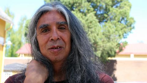 Missbruk och hemlöshet förstörde Sergio Gonzales tänder. Nu  Bild: Liselott Holm